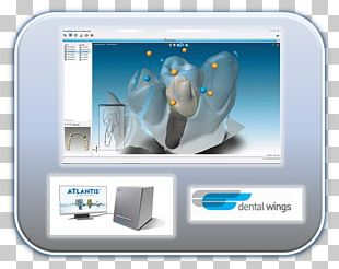 CAD/CAM Dentistry Tooth Crown PNG