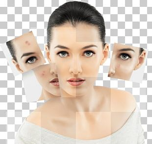 Skin Care Photorejuvenation Human Skin Acne Collagen Induction Therapy PNG