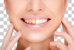 Tooth Whitening Dentistry Smile PNG