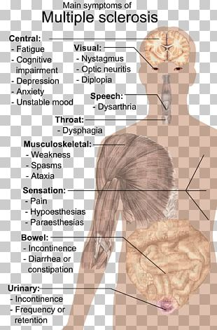 Multiple Sclerosis Signs And Symptoms Medical Sign Disease PNG