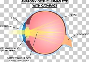 Light Eye Lens Strength Training Anatomy Cataract PNG