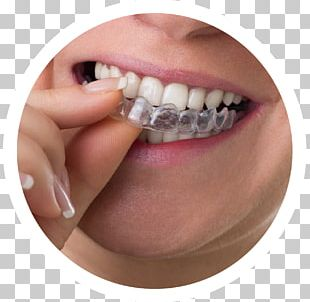 Clear Aligners Dental Braces Dentistry Orthodontics Tooth PNG