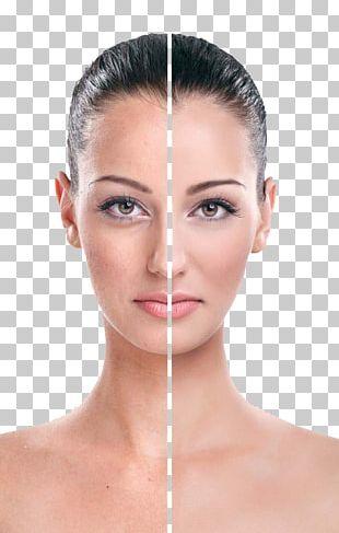 Rhytidectomy Eye Face Wrinkle Cream PNG