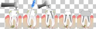 Root Canal Endodontic Therapy Crown Tooth Dentist PNG