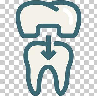 Dentistry Crown Dental Implant Veneer PNG