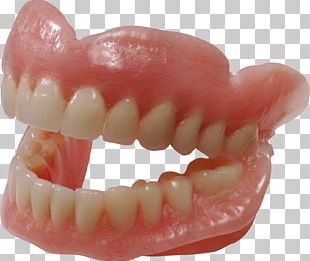 Dentures Dentistry Human Tooth Removable Partial Denture PNG