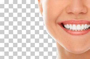 Dentistry Oral Hygiene Dental Implant Dental Public Health PNG