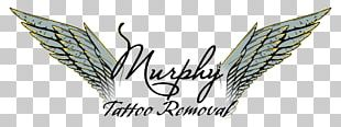 Murphy Tattoo Removal Laser Murphy Plastic Surgery & Medical Spa PNG