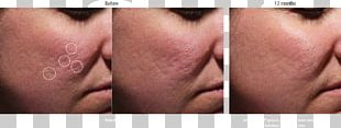 Cheek Scar Acne Injectable Filler Therapy PNG