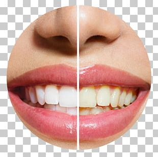 Lee And Van Mieghem DDS Cosmetic Dentistry Tooth Whitening PNG