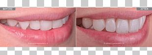 Smile Human Tooth Dentist White House Tooth Whitening PNG