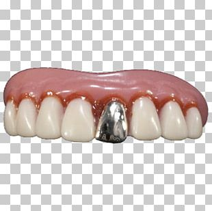Human Tooth Dentures Gold Teeth PNG