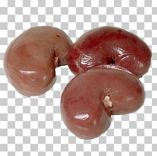 Kidney Stone Human Body Organ Homo Sapiens PNG
