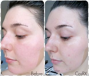 Stridex Maximum Acne Beta Hydroxy Acid Benzoyl Peroxide PNG