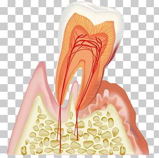Dentistry Periodontal Disease 歯科 Gums PNG