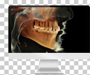 Cone Beam Computed Tomography Dental Radiography Dentistry PNG