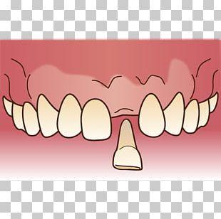 審美歯科 Dentist Dentures Dental Technician PNG