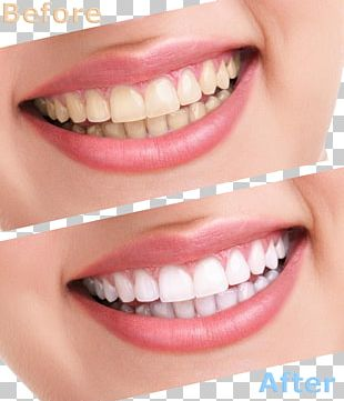 Tooth Whitening Human Tooth Cosmetic Dentistry PNG
