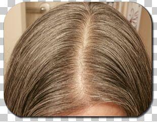 Hair Loss Blond Hair Coloring Human Hair Growth PNG