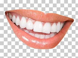 Cosmetic Dentistry Clinic Periodontology PNG
