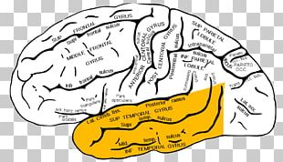 Temporal Lobe Epilepsy Lobes Of The Brain Inferior Temporal Gyrus PNG