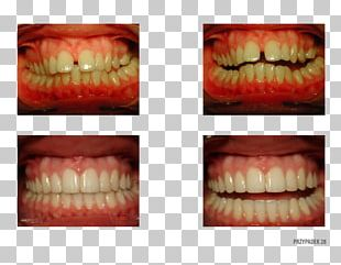 Orange Polska Tooth Close-up Therapy PNG
