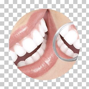 Cosmetic Dentistry Tooth Periodontology PNG