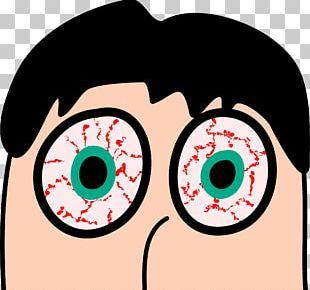 Dry Eye Syndrome Red Eye Eye Strain PNG