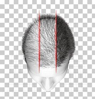 Hair Loss Botak Tónico Marco Antônio Vale Gomes PNG