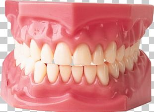 Gums Human Tooth Dentistry Dentures Periodontitis PNG