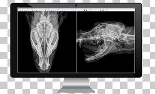 Medical Imaging Radiology Medicine X-ray Radiography PNG