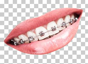 Tooth Dental Braces Dentistry PNG