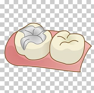 Dentist Tooth Decay Inlays And Onlays Dental Braces Therapy PNG
