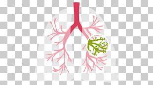 Cystic Fibrosis Lung Medical Diagnosis Symptom Solitary Pulmonary Nodule PNG