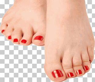 Hammer Toe Nail Foot Onychomycosis PNG