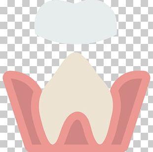 Tooth Dentistry Bridge Dental Implant PNG