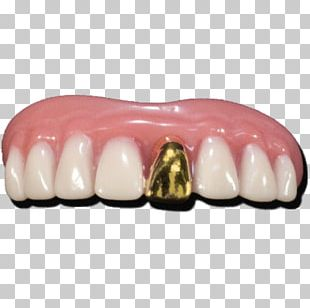 Human Tooth Gold Teeth Dentures PNG