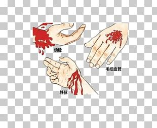 Emergency Bleeding Control First Aid Medical Sign Wound PNG