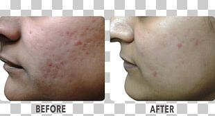 Cheek Chin Lip Dermatology Collagen Induction Therapy PNG