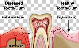 Periodontal Disease Gums Periodontology Dentistry PNG