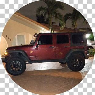 All Dental Group Jeep Wrangler Dentistry Inlays And Onlays PNG
