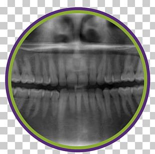 Dentistry Periodontal Disease Tooth Periodontosis Dental Radiography PNG