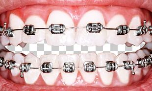 Dental Braces Dentistry Orthodontics Tooth Whitening PNG