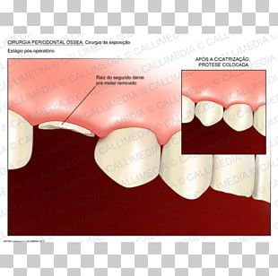 Tooth Crown Lengthening Dentistry Surgery PNG