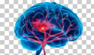 Stroke Neurology Medicine Therapy Depression PNG