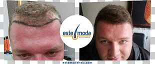 Este Moda Hair Saç Ekim Merkezi Forehead Hair Transplantation Hair Coloring Capelli PNG