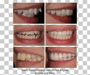 Tooth Adult Orthodontics Clear Aligners Dental Braces PNG