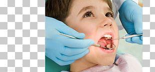 Pediatric Dentistry Cosmetic Dentistry Dental Implant PNG