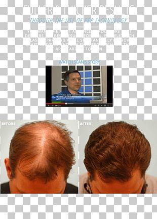 Hair Loss Png Images Hair Loss Clipart Free Download