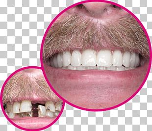 Human Tooth Dentures Dentist Implant PNG